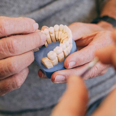 Gebissmodell für die Implantologie beim Zahnarzt in Frankfurt