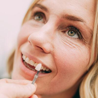 Zahnfarbe für Bleaching wird genau an die Farbe der natürlichen Zähne angepasst.