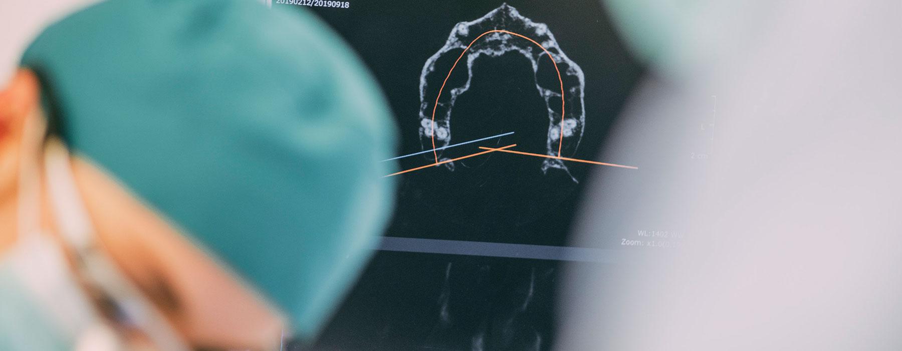 Röntgenbild für die Sofortversorgung mit festen Zähnen in Frankfurt-Sachsenhausen