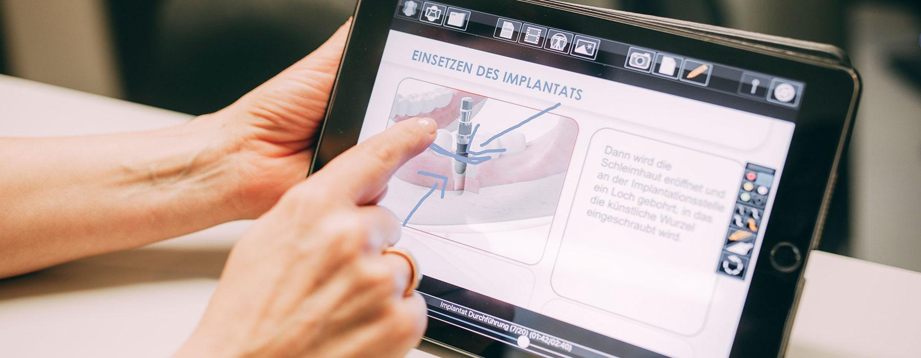 Grafik, wie ein Zahnimplantat bei Dr. Thorn in Frankfurt-Sachsenhausen sofort eingesetzt wird
